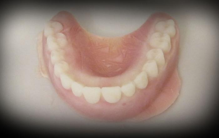 Halloween_utvaldbild-teeth2